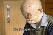 japanese-atomic-bomb-victims-48