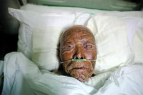 March 29, at Jiangsu's Lianyungang City N0. 1 Hospital, lying on a hospital bed is the 92-year-old villager Tao Xingrao who was injured in the Donghai self-immolation incident.