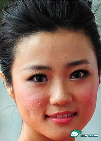 Close-up photo of Kong Yansong, revealing poor skin.