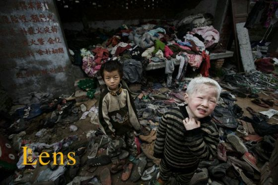 Two foster children, one an albino, in dirty clothes donated by kind-hearted people.