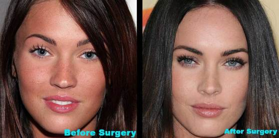 Megan Fox Plastic Surgery Before and After Pic