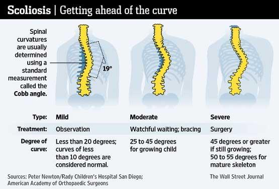 Bad Postures Info