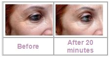 Face Wrinkle Removal
