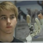 See a real bionic hand in action!