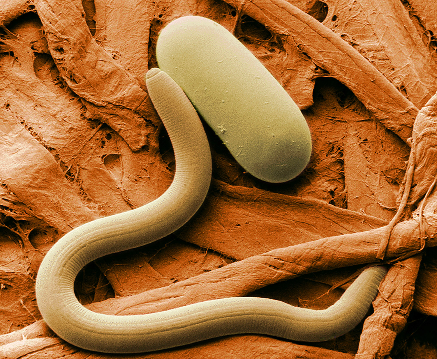 Fullsize Of Worm Under Microscope