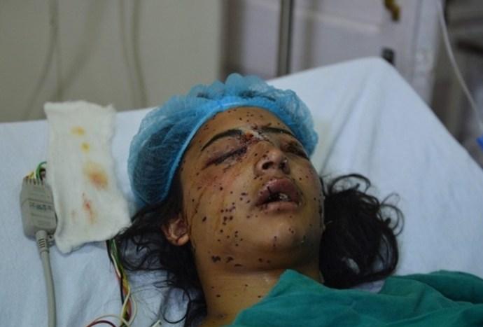 kashmir-pellet-injury