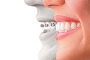 invisalign straightens teeth