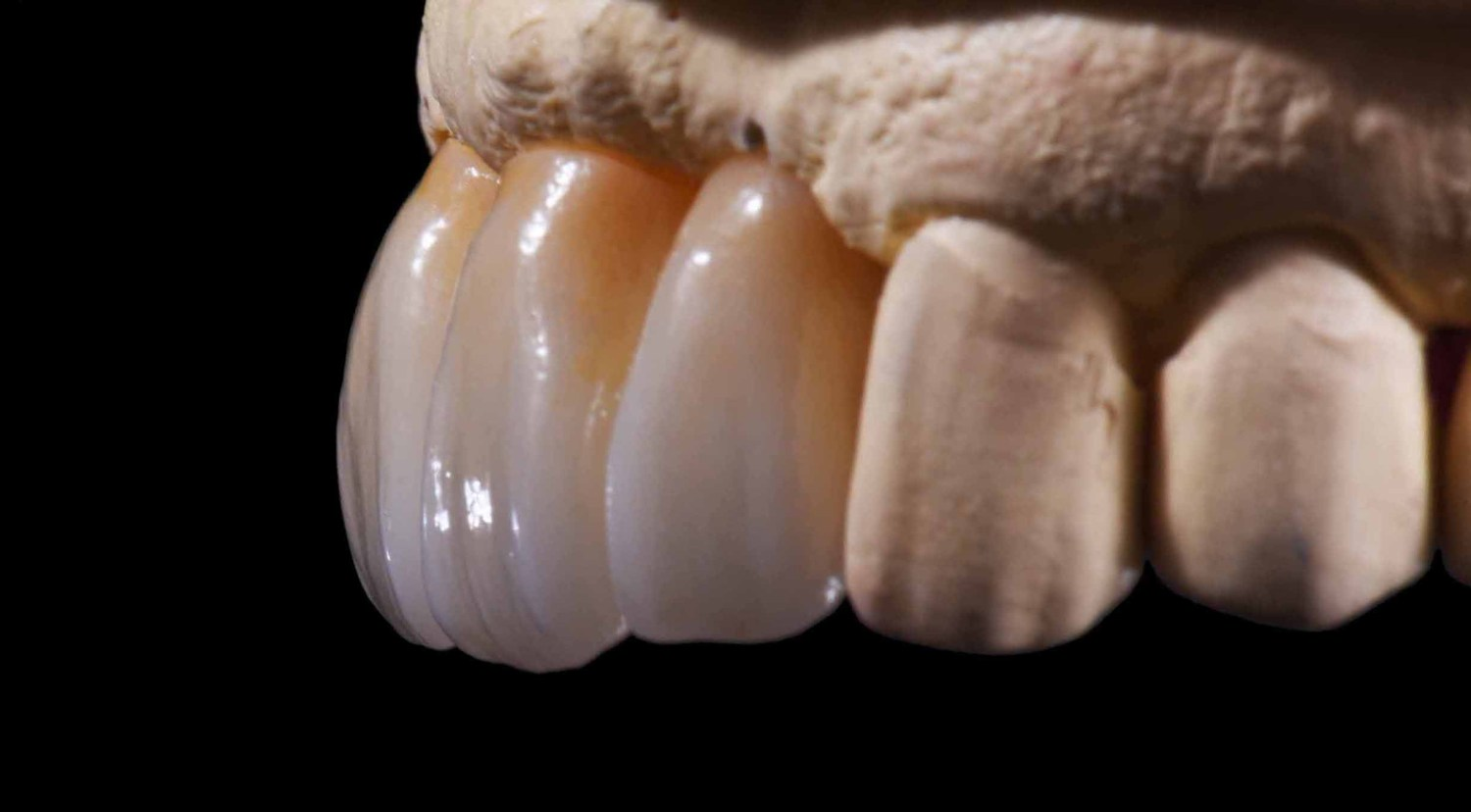 Aesthetic All Ceramic Restoration Crystal Dental Design