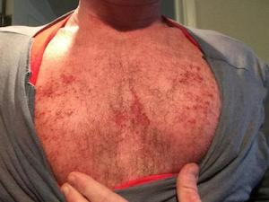 Red Skin Syndrome chest