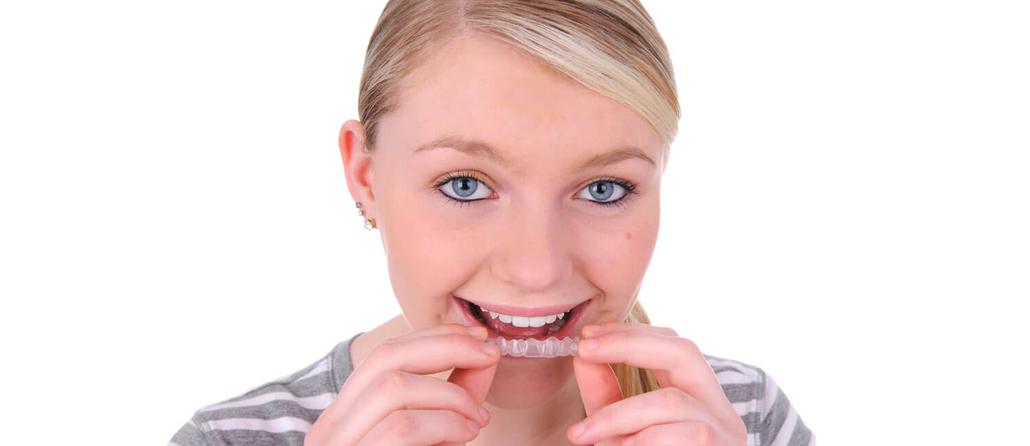 Invisalign Clear Braces Aligners