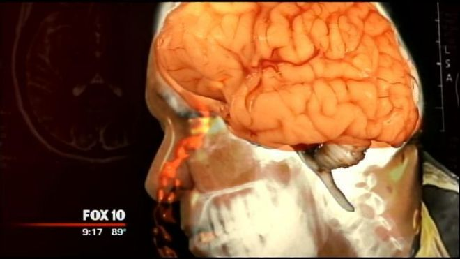 An image of Joe Nagy's brain, which was leaking fluid through his nose. (FOX 10)