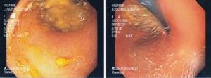 Endoscopy Photos