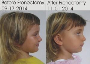 Frenectomy-Improvement-Face-Development