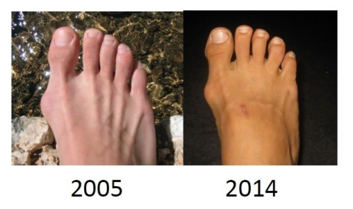 Non Surgical Bunion Treatment