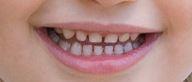 Wide-Palate-With-Good-Teeth-Spacing