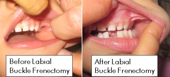 Labial-Frenectomy-Buckle-Before-After-Pictures