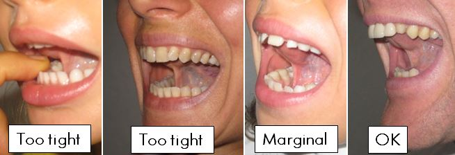 Lingual Frenectomy Too Tight or Not