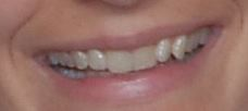 Teeth-Crowding