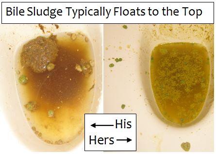 Bile Sludge Pictures Debug Your Health