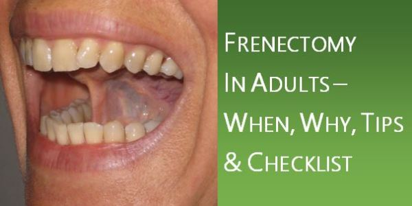 Frenectomy in Adults
