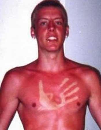 nude redhead men