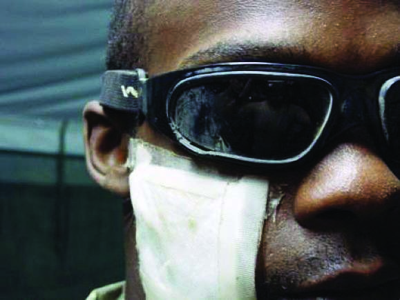 eye protection Vision Center of Excellence