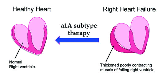 a1A subtype therapy