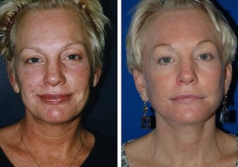 laser-resurfacing-before-and-after-photo-1