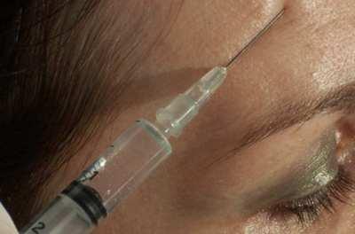 El uso del botox aumentó un 25% en España durante el último año