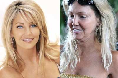 Famosas al desnudo, Heather Locklear demacrada