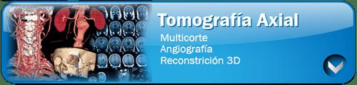 tomografia-boton
