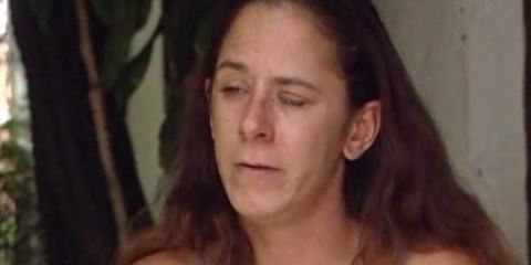 Florida woman accidentally glues eyes shut