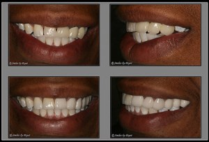 Another example before-after picture for marketing dentistry online.
