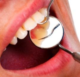 Gum Cancer