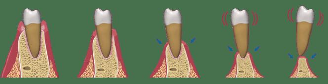 dental-implant-bone-loss1