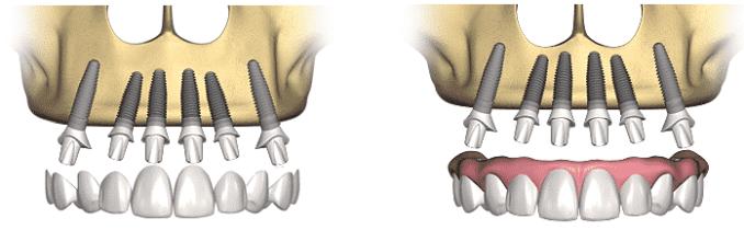 dental-implant-prosthetic-procedure2