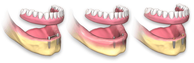 full-arch-dental-implant-removable2
