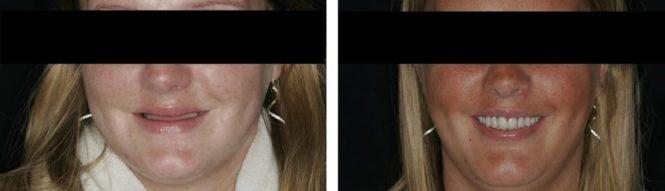 implantologia15