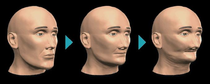 perdita-osso-facciale-2