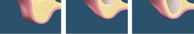sinus-atrophy2