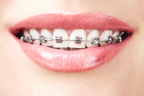 orthodontic means