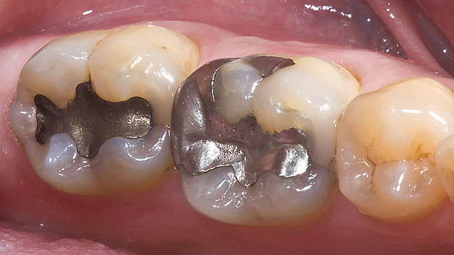 Amalgam Fillings- Most Basic of Fillings