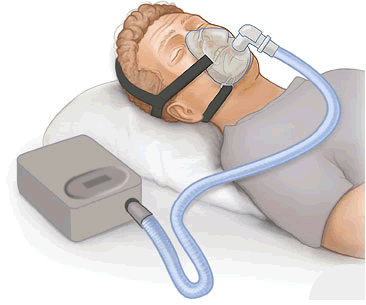 Continous Positive Airway pressure machiine