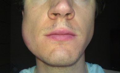 SWELLING IN THE JAW ORAL CANCER