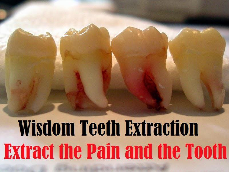 Wisdom Tooth- Swollen? Infected? Pain?