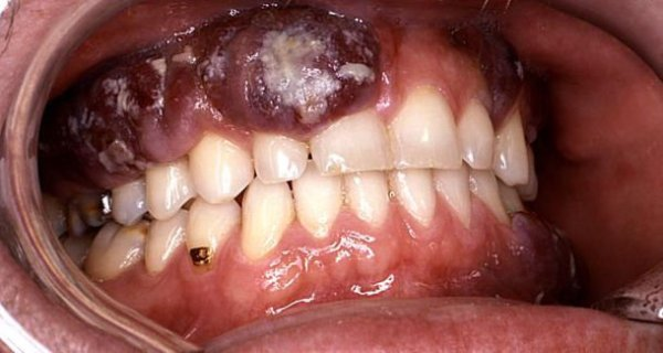 oral cancer pictures