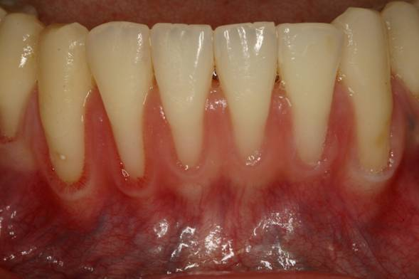 Gum Recession Treatment- Fix Your Receding Gums