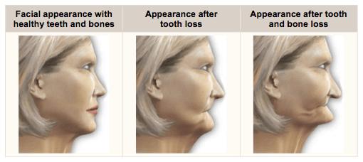 denture bone loss