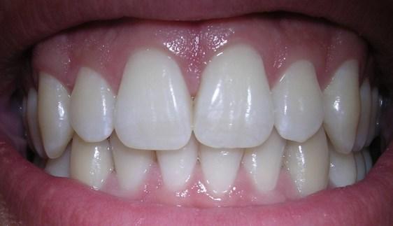 gum infection symptoms