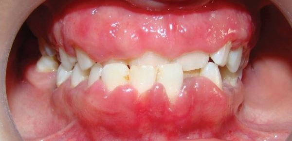 symptoms of gum infection